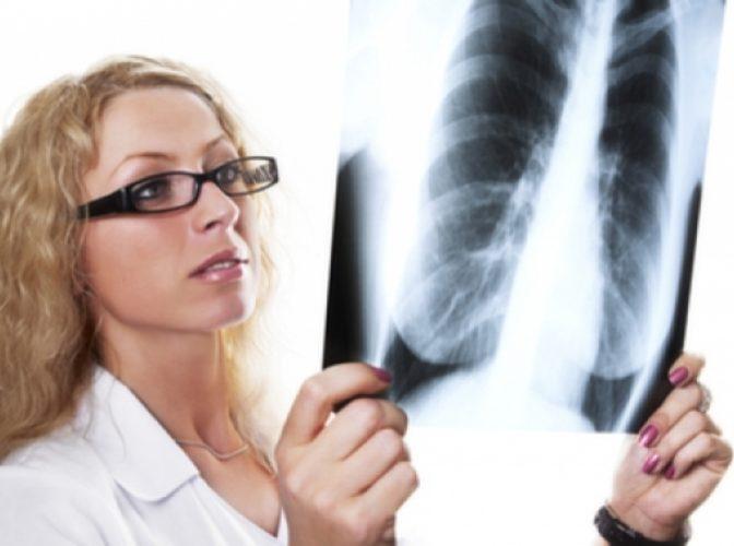 Anchetă la Spitalul Județean de Urgență Slatina, după ce 140 de radiografii au fost găsite în vestiarele a trei ortopezi