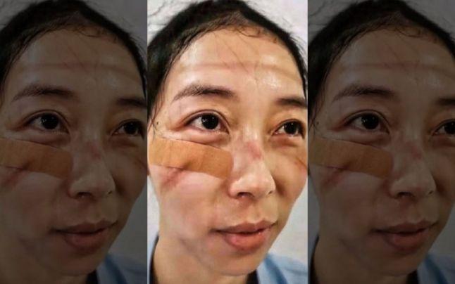 Faţa nevăzută a luptei cu virusul din China: medicii au răni pe mâini şi pe faţă, poartă scutece şi dorm pe unde apucă